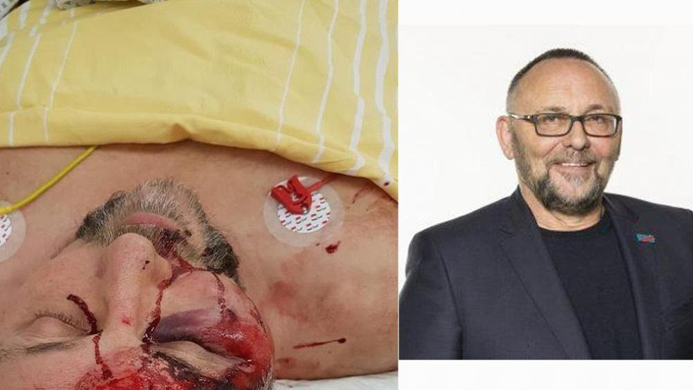 Alternative for Germany chairman left with severe head injuries after violent attack